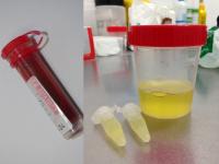 2.1_PCR_Muestras