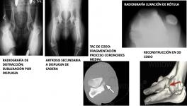 Clave 4 patologías articulares con leyenda