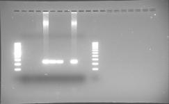 FIGURA 6. PCR