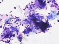 Fig 7.2 RUSO Otitis malassezia2 (1)