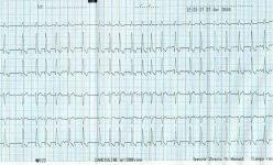 Figura-10.-ECG.jpg