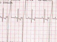 Figura-2.-ECG-CPVs.jpg