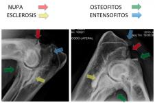 clave 9 Imagen signos radiologicos artrosis