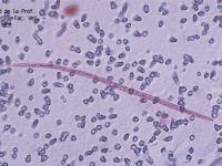 metodo de knott microfilaria